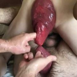 Really shocking sized amateur anal prolapse ever seen